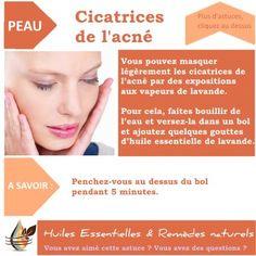 Vous avez une peau acnéique ? Je vous dévoile 4 étapes indispensables pour traiter une peau acnéique avec les huiles essentielles et les eaux florales.
