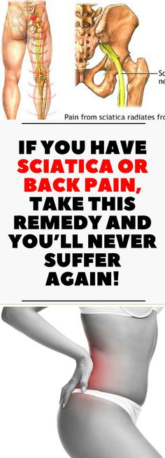 If You Have Sciatica or Back Pain, Take This Remedy and You'll Never Suffer Again! !!!
