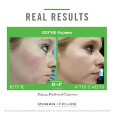 """""""I was a girl who had tried it all. I was introduced to Rodan + Fields SOOTHE Regimen and saw positive results after just two weeks. I'm thankful, my skin feels good, I feel good. Win-Win!"""" –R + F PC, Dayya Goetzinger.  """"PIN"""" if the SOOTHE Regimen has made you feel good. #RFCalmYourself"""