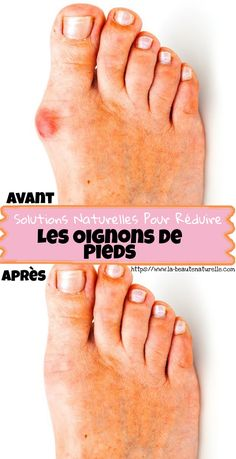 Solutions naturelles pour réduire les oignons de pieds The onions of the feet are those bony protube Weight Loss Journal, Weight Loss Challenge, Weight Loss Transformation, Weight Loss Help, Weight Loss Surgery, Body Love, Weight Loss Inspiration, Natural Solutions, Feet Care