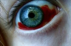 Burst veins in the eye. Possibly from a medical condition that caused hemorrhaging, or a physical injury (such as a blow to the face or similar).