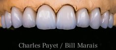 Dental Anatomy, Dental Technician, Teeth Shape, Dental Art, Dentistry, Smile, Album, Create, Inspiration