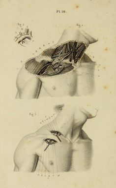 """Plate 10. """"Ligature of the axillary and subclavian arteries."""" Illustrated manual…"""