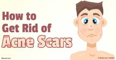 Here are some safe and natural solutions that will help get rid of those scars and get your smooth and beautiful skin back.