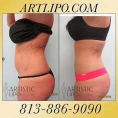 Our #Liposuction Tampa-Orlando-Sarasota-Clearwater-StPetersburg-Miami-Florida-Atlanta by #DrSu will create a difference that you will see and feel great about it! Call us today ☎️813-886-9090 or visit ➡️Artlipo.com to schedule a complimentary consultation! #Artlipo #HighDefinition #Tumescent #Liposuction #Artlipo #plasticsurgery #cosmeticsurgery #Tummytuck #Alternative #bodycontouring #BodyShaping #abs #flatstomach #flattummy #abdomen #lovehandles #back #mommymakeover
