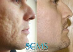 Remove acne scars with our laser acne scar removal treatment. Call us for a free consultation today Laser For Acne Scars, Laser Acne Scar Removal, Acne Scar Removal Treatment, Pimple Scars, Pimples, Adult Acne Treatments, Skin Resurfacing, Acne Breakout, Remove Acne