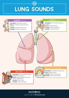 Lung Sounds – Nursing Basics – Fundamentals of Nursing – Picmonic for Nursing – Nurse life – emedical Pharmacology Nursing, Icu Nursing, Nursing Tips, Nursing Programs, Nursing Cheat Sheet, Lpn Programs, Mnemonics For Nursing, Health Assessment Nursing, Funny Nursing