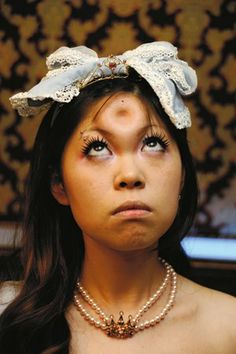 "Apparently Japanese hipsters think getting ""bagel head"" saline injections is cute. I had to look this up on line apparently it is absolutely true!"