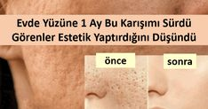 Sadece Karışımdan Sürdü, Görenler Estetik Yaptırdığını Zannetti When used regularly, it corrects enlarged pores in 1 month. Close is not the solution! By focusing on the solution, the factors that cause the expansion of the pores and what we can do Homemade Skin Care, Diy Skin Care, Puffy Eyes, Healthy Skin Care, Acne Skin, Good Skin, Sensitive Skin, Health And Beauty, Makeup Tips