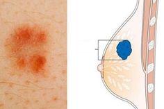 Bulka není jediným příznakem rakoviny prsu. Nepodceňujte ani další varovné signály