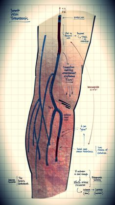 Nursing Study Tips, Vascular Ultrasound, Ultrasound Technician, Gastroenterology, Phlebotomy, Physiology, Surgery, Medical, How To Plan