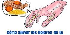 Los 3 mejores remedios naturales para la artritis reumatoide