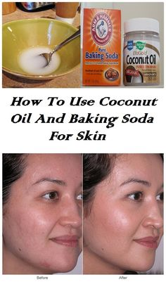How To Use Coconut Oil And Baking Soda For Skin