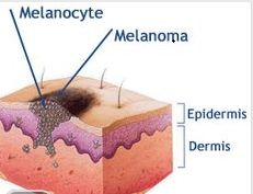 This is how Cancer spreads check all moles before it happens to you.