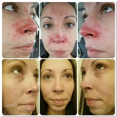 Rosacea.  Rodan and Fields SOOTHE can help! Ask me how!