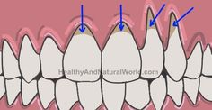 How to Get Rid of Gum Infection (Gingivitis) Naturally