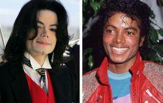 Un des cas de chirurgie esthétique les plus connus est Michel Jackson qui y a eu recours à de nombreuses reprises, surtout pour le nez, et les pommettes.