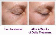 Palovia Skin Renewing Lazer- at home treatment