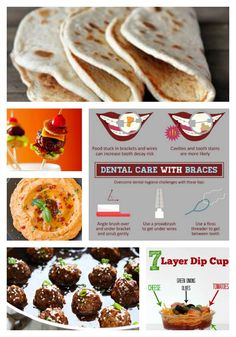 If Youre Having Guests Over With Braces Consider These