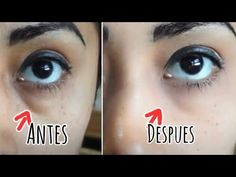 AMAZING! in a 5 minutes! Removes eye bags Dr. Lola Amazing, Youtube, How To Remove, Videos, Music, Bb, Eyes, Faces, Beauty