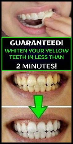 Whiten Your Yellow Teeth In Less Than 2 Minutes! Whiten Your Yellow Teeth In Less Than 2 Minutes! Baking Soda Scrub, Baking Soda And Lemon, Teeth Whitening Remedies, Natural Teeth Whitening, Whitening Kit, Homemade Teeth Whitening, Charcoal Teeth Whitening, Teeth Health, Oral Health