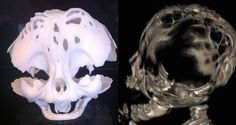3D Printing Saves the Life of a Newborn with Cloverleaf Skull Syndrome in Brazil http://3dprint.com/48390/cloverleaf-skull-syndrome/