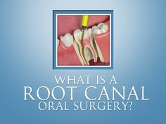 What is a root canal oral surgery? The surgery that allows the surgeon to get inside a tooth's root from the bottom of the tooth, rather than from the top (the crown). Endodontic surgery is done in the dentist's office. An endodontist, general dentist or oral surgeon can perform this procedure.