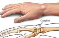 Tres remedios efectivos para eliminar los quistes ganglionares