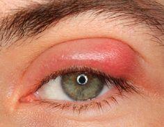 6 domácich spôsobov, ktoré vám môžu pomôcť vyliečiť jačmeň na oku