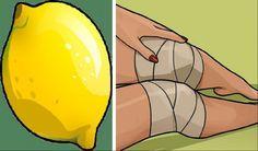 Πως με ένα λεμόνι θα ξεχάσεις τον πόνο στο γόνατο δίχως να επισκεφτείς γιατρό.