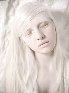 albino girl inspiration