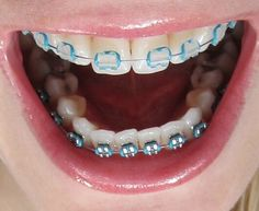 Teeth Implants, Dental Implants, Dental Hygiene, Dental Health, Severe Tooth Pain, Teeth Whitening Cost, Dental Costs, Dental Bridge Cost, Family Dental Care