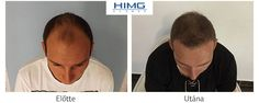 Hair Transplantation Before After photos. Hair Transplant at the best quality for a reasonable price! Before After Photo, Hair Loss Remedies, Hair Transplant, Your Hair, Women, Trends, Medium, March, Free