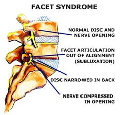 Facet joint syndrome is caused by trauma of the neck suffered in a vehicle accident. Also, degenerative changes in the cervical, thoracic and lumbar spine can lead to abnormal stress and strain that results in an increased load on the facet joints Whiplash Injury, Degenerative Disc Disease, Spine Surgery, Spinal Stenosis, Spine Health, Chiropractic Care, Back Pain Relief, Neck Pain, Chronic Pain
