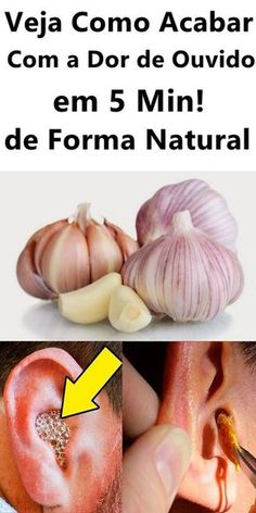 Aloe Vera, Natural Remedies, Garlic, Medicine, Health Fitness, Vegetables, Food, Home Remedies For Earache, Appetizers