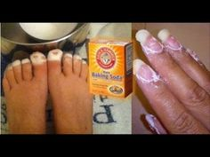 The most inexpensive health remedy in the world is baking soda. It is beneficial for oral health, effective at combating everything from colds to cancer and so much more. Health benefits of baking soda include Baking Soda Benefits, Baking Soda Uses, Natural Cures, Natural Healing, Oral Health, Health And Wellness, Health Care, Health Remedies, Home Remedies