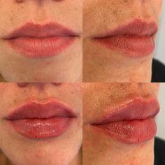 Bei dieser Patientin verwendete ich 1ml Teoxane Kiss für diesen unmittelbaren Effekt Lip Fillers, Lips, Lip Shapes, Fuller Lips, Liposuction, Thin Lips, Face, Upper Lip, Collagen