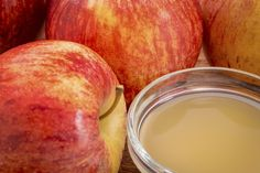 home remedies for strep throat with raw apple cider vinegar Taking Apple Cider Vinegar, Apple Cider Vinegar Remedies, Apple Cider Vinegar Benefits, Strep Throat Remedies, Vinegar Hair Rinse, Apple Health Benefits, Healing Herbs, Home Remedies, Natural Remedies