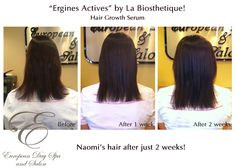 """Naomi's hair after just 2 weeks, this is amazing! -""""Ergines Actives"""" by La Biosthetique! - A hair growth serum for existing thin hair. If you are interested in ordering this awesome product """"Ergines Actives"""" by La Biosthetique, please drop in or call the Spa at (604) 852-2228 and we'd be happy to place an order for you!   www.abbotsfordspa.ca"""