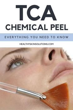 TCA Chemical Peel - Everything You Need to Know: