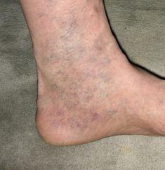 Veľa z nás žien trápia žilky na nohách. Tieto malé, nevzhľadné zmeny vznikajú z rôznych dôvodov – nadváha, sedavý spôsob života, hormonálne zmeny. Existuje však spôsob, ako sa ich účinne zbaviť! Má…