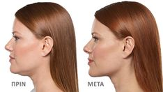 Double Chin Removal in Dubai, Abu Dhabi & Sharjah, to safely and painlessly improve the silhouettes of your face by removing your double chin with long lasting and natural results. Chin Liposuction, Double Chin Removal, Beauty Boost, Hair Transplant, Jawline, How To Increase Energy, Facial, How To Remove, Skin Care