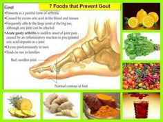 Foods that help Gout