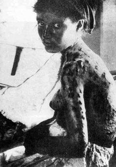 Woman with knife wounds. Genocide Museum | The Armenian Genocide Museum-institute