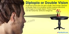 Diplopia also known as Double Vision, is a condition where a person perceives a single object as double. Know the causes, symptoms, tests, treatment: surgery and medications. Drooping Eyelids, Muscle Problems, Distorted Images, Eye Pain, Vision Therapy, Double Vision, Vision Eye, Clear Eyes, Top