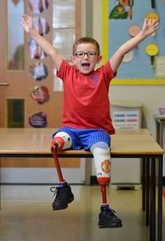Celebration time: Robbie can take part in everyday activities such as PE lessons Orthotics And Prosthetics, Pe Lessons, Prosthetic Leg, Special Kids, We Are The World, Strike A Pose, Happy Kids, Young People, Pediatrics