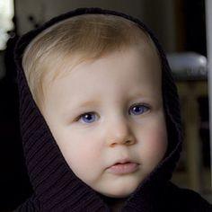 Beautiful Childd!! Ocular albinism
