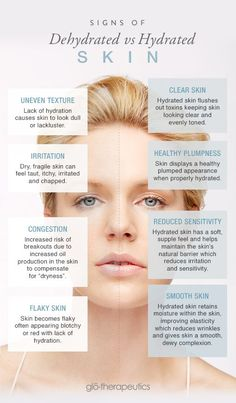 Difference Between Dehydrated & Hydrated Skin - infographic - glo