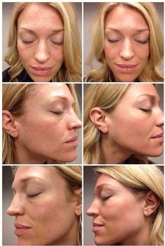 Rodan + Fields gives you the best skin of your life and the confidence that comes with it. Created by Stanford-trained Dermatologists, we understand skin. Our easy-to-use Regimens take the guesswork out of skincare so you can see transformative results. Rodan Fields Skin Care, Rodan And Fields Redefine, Redefine Regimen, Love Your Skin, Good Skin, Chemisches Peeling, Rodan And Fields Consultant, Independent Consultant, Body Fitness