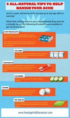 6 Tips to Get Rid of Acne Naturally >> PIN or LIKE this Interesting InfoGraphic #skincare #acnetreatment #infographics >> Share It with Your Friends, Relatives and Colleagues >> VISIT: http://www.howtogetridofacnescar.com/category/skin-care-infographics/